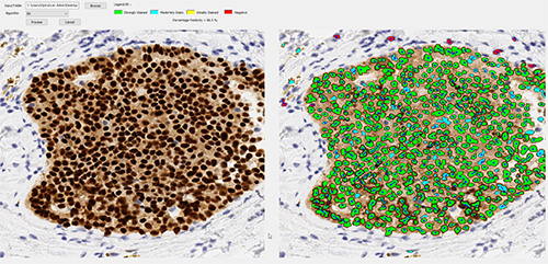 Digital Pathology Image Analysis Software